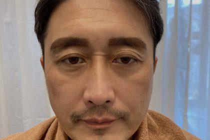 まゆ毛ワックス脱毛の仕上がり具合をマーキングした画像
