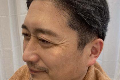 まゆ毛ワックス脱毛後の画像3